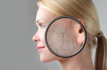 Sucha skóra - po jaki krem sięgnąć, aby ją nawilżyć?