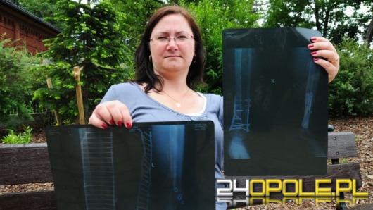 Opolanka walczy o odszkodowania za złamaną nogę