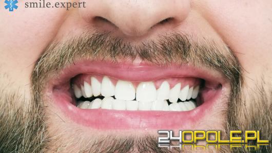 Wybielanie zębów we Wrocławiu - gwarantowana pewność siebie