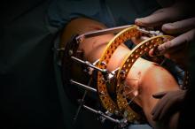 To pierwszy na Opolszczyźnie zabieg wykonany tą metodą. 11-latka przeszła operację w USK