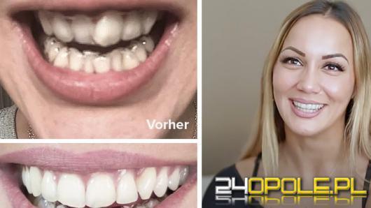 Niewidoczne aparaty ortodontyczne 3D dostępne już w Opolu
