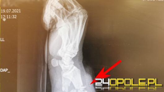 W szpitalu w Kędzierzynie-Koźlu przyszyto prawie urwaną rękę